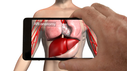 Augmented reality medical imaging